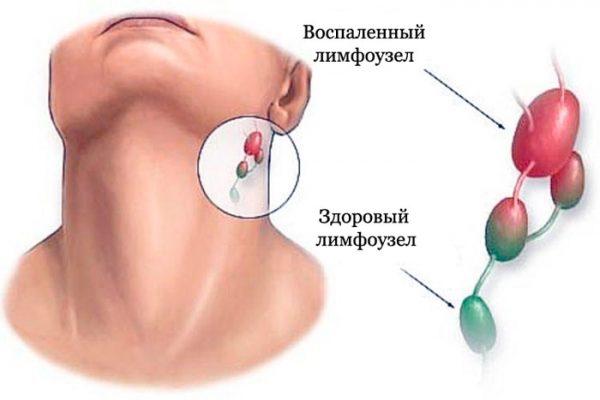 Болит горло и шишка на голове